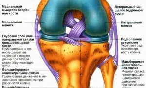 Симптомы дегенеративного повреждения менисков колена
