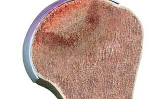 Почему возникает некроз головки плечевой кости и как его лечить?