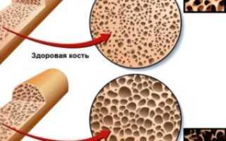 Чем отличается болезнь остеопороз от остеопении?