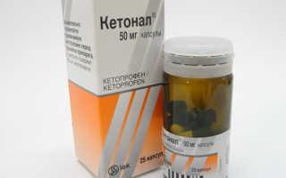 Какие заменители лекарства Кетонал существуют?