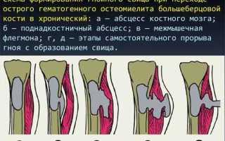 Эффективные способы лечения остеомиелита кости