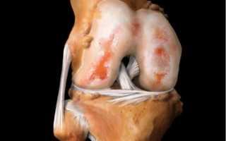Лечение посттравматического артрита суставов