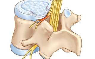 Чем грозит защемление нерва в позвоночнике?