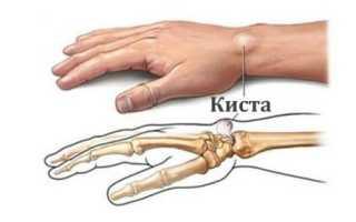 Признаки развития кисты на руке и способы ее лечения
