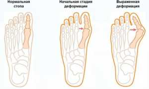 Как остановить рост косточки на ноге возле большого пальца?