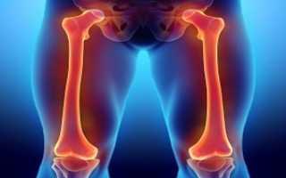 Особенности проявления остеомы бедренной кости