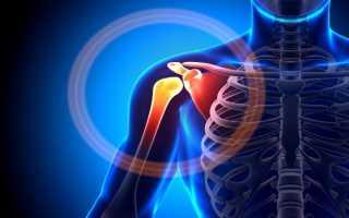 Особенности лечения остеохондроза плечевого сустава