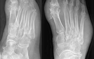 Методы лечения артроза большого и других пальцев ноги
