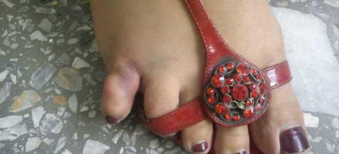 Как оказать первую помощь при вывихе пальца на ноге?