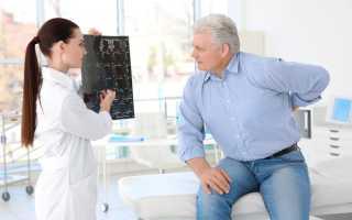 Симптомы и особенности лечения грудного остеохондроза