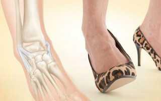 Признаки разрыва связок стопы и особенности лечения