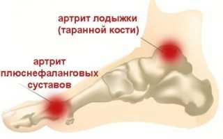 Артрит мелких суставов и пятки стопы: симптомы и лечение