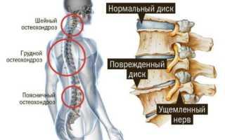 Какие миорелаксанты применяют при лечении остеохондроза?