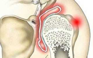 Симптомы и способы лечения артрита плеча разных форм