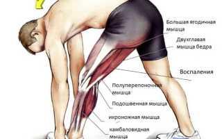 Особенности проявления энтезопатии суставов