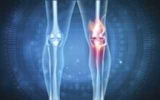 Возможные причины развития артроза и его лечение