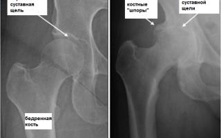Osteosanum — эффективное средство для суставов и связок