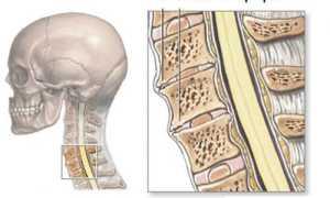 Симптомы и лечение ревматоидного артрита позвоночника