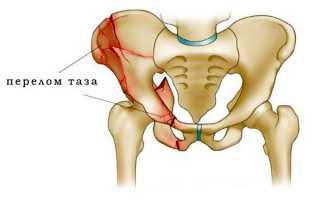 Характерные признаки перелома таза и его лечение