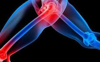Диагностика генерализованного остеоартроза и его лечение