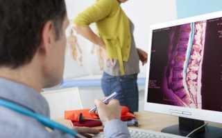 Проведение компьютерной томографии поясничного отдела