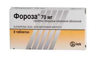 Применение препарата Фороза при остеопорозе