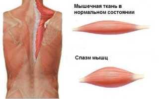 Чем опасны мышечные спазмы и как их устранить?