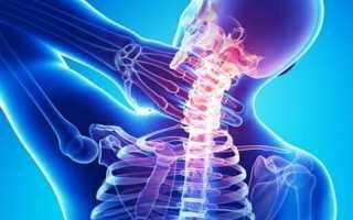Упражнения для снятия боли в шейном отделе позвоночника