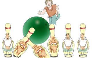 Аутоиммунное заболевание артрит: патогенез, этиология, терапия