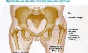 Лечение врожденного вывиха тазобедренного сустава