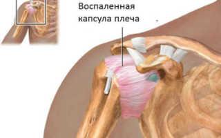 Признаки появления кисты плечевого сустава и ее лечение